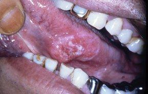 上顎歯肉癌 舌癌